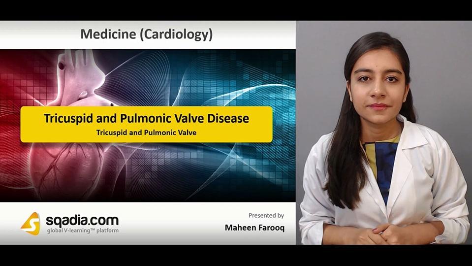 Data 2fimages 2fgwpsj0sjqqkxv70yfhdm 181229 s1 farooq maheen tricuspid and pulmonic valve
