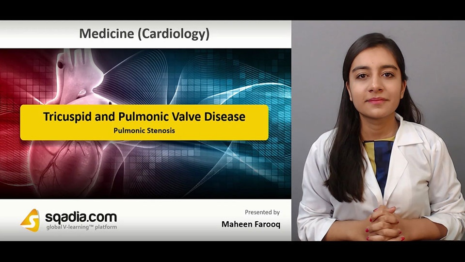 Data 2fimages 2ffhffqlteq7gvuiey0why 181229 s4 farooq maheen pulmonic stenosis