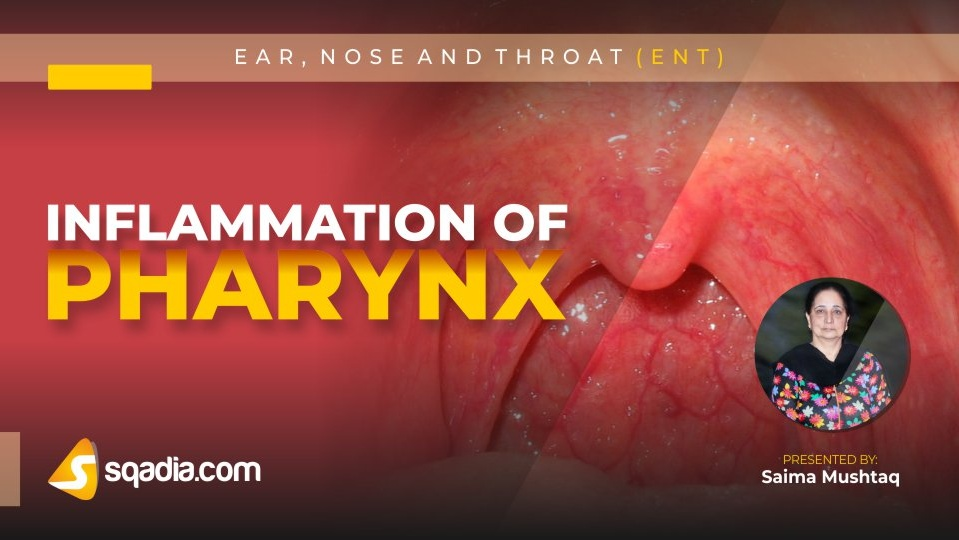 Data 2fimages 2foaqfgwrvqlsjtt4mvvrn 190128 s0 mushtaq saima inflammation of pharynx intro