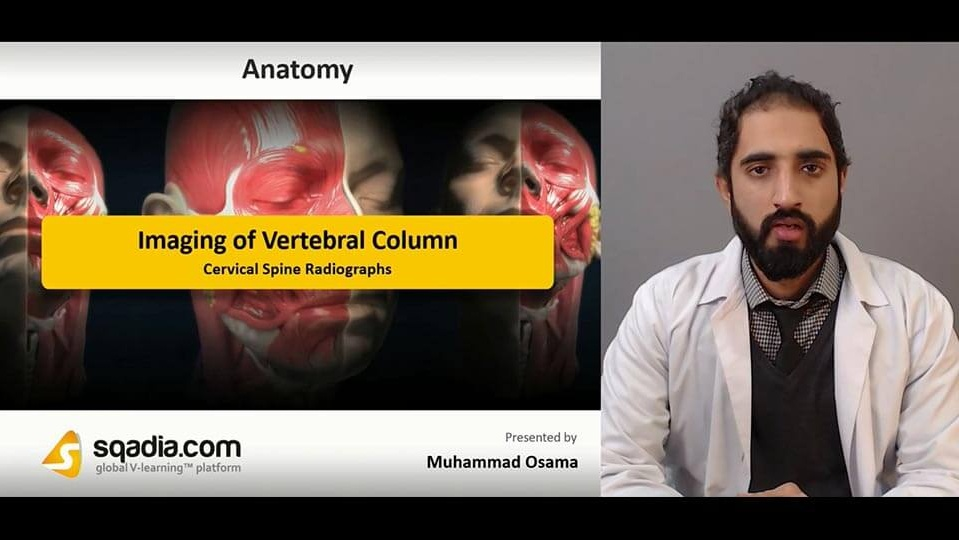 Data 2fimages 2fjbwdbks4rok9bbazawoo 190131 s2 osama muhammad cervical spine radiographs