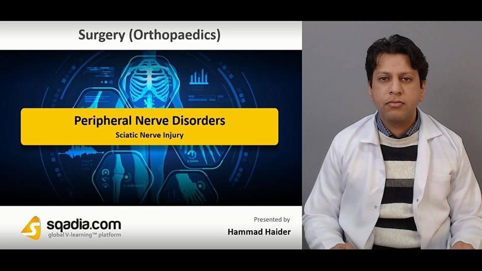 Data 2fimages 2frbtrkgzms0sbmdbowi8g 190201 s5 haider hammad sciatic nerve injury