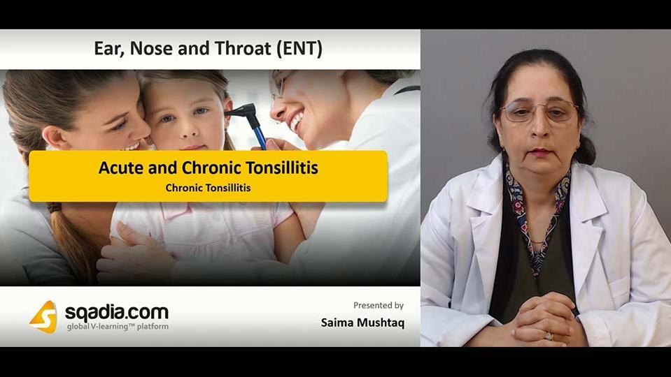 Data 2fimages 2fe6xtnvm3swsloxzhuy9o 190204 s4 mushtaq saima chronic tonsillitis