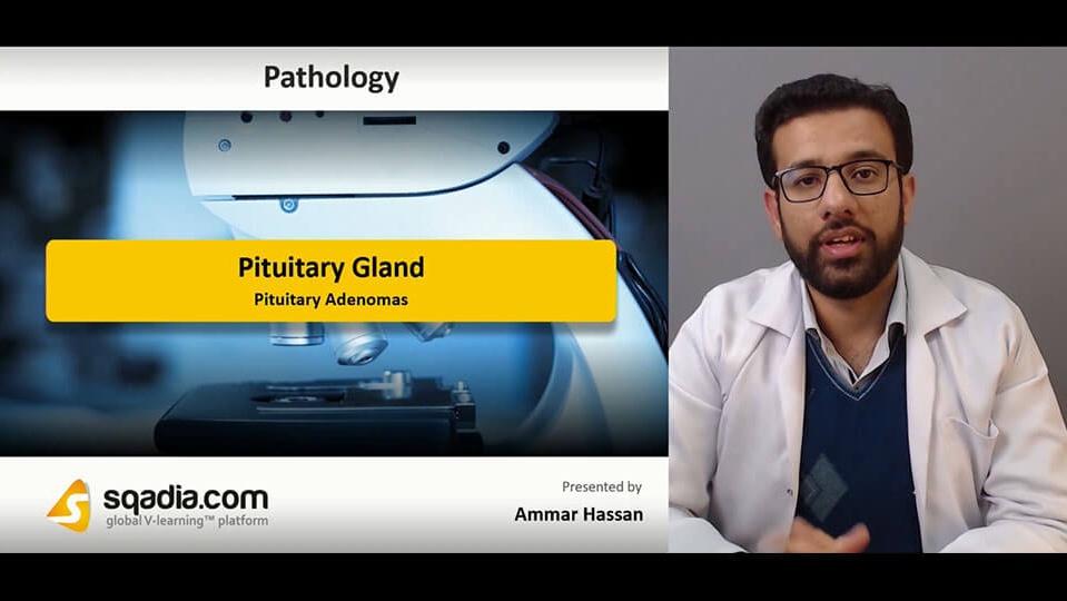 Data 2fimages 2flk1qgefrqzutdpfetmvm 190213 s3 hassan ammar pituitary adenomas