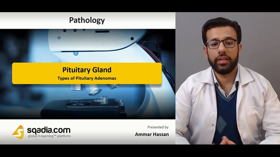 Data 2fimages 2foquanpmsskg3b9rncdat 190213 s4 hassan ammar types of pituitary adenomas