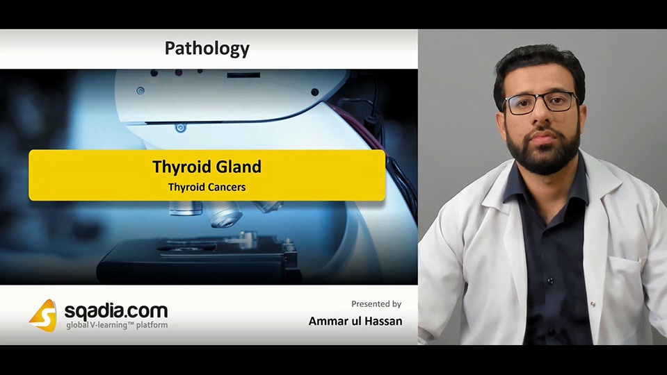 Data 2fimages 2fntizlvs9s02fndlh7tda 190222 s5 hassan ammar thyroid cancers