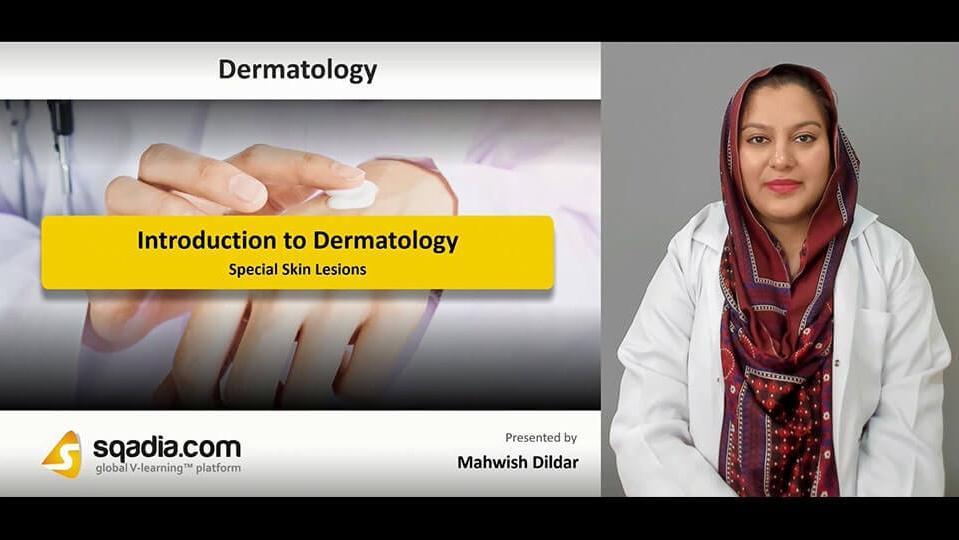 Data 2fimages 2ffjjewcewrcoi3zykndwa 190227 s4 dildar mahwish special skin lesions