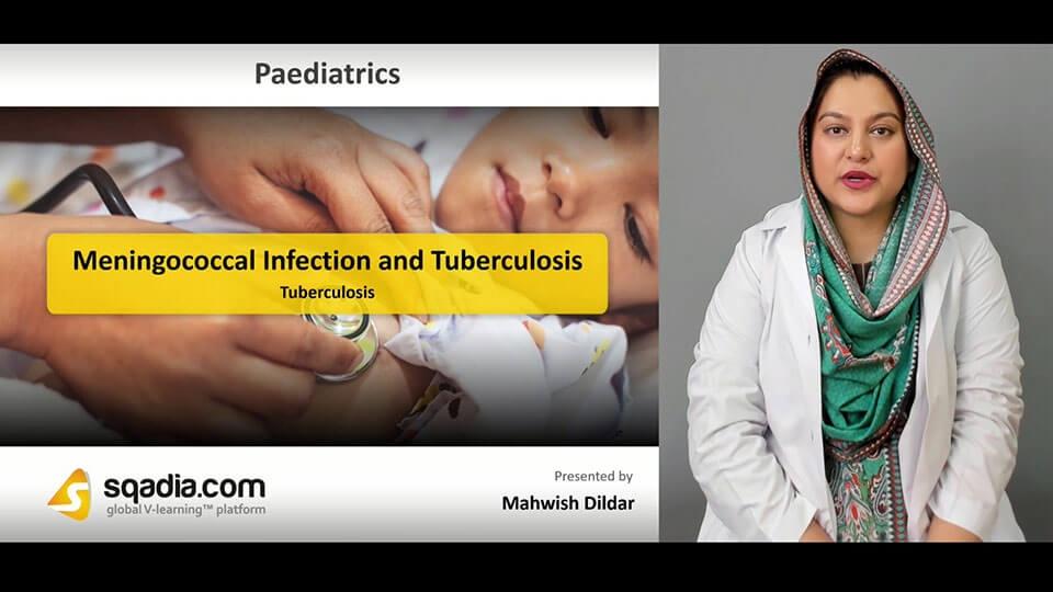 Data 2fimages 2fmgpzuhklqmg6xrmdl9ei 190306 s2 dildar mahwish tuberculosis