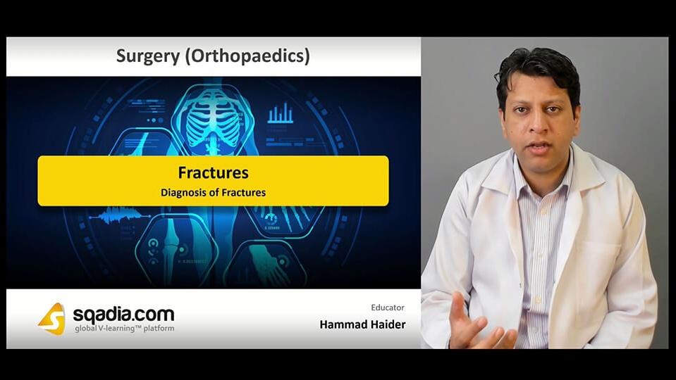 Data 2fimages 2fkkj5tcdt7gjkte6excgk 190329 s4 haider hammad diagnosis of fractures