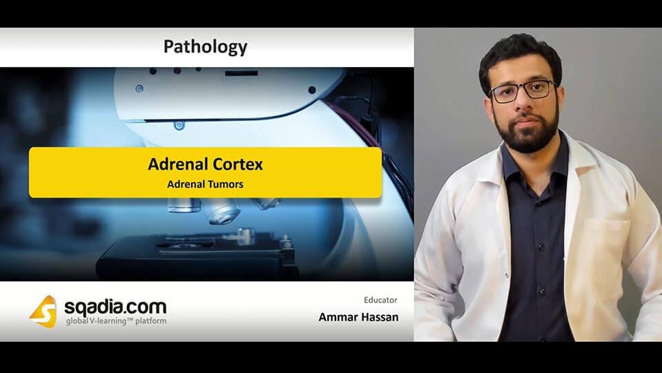 Data 2fimages 2f3p78podttcrjwsib8gmq 190405 s4 hassan ammar adrenal tumors