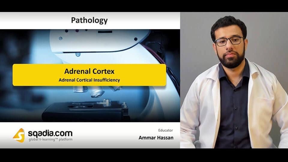 Data 2fimages 2fexijlthftikpihulfspi 190405 s2 hassan ammar adrenal cortical insufficiency