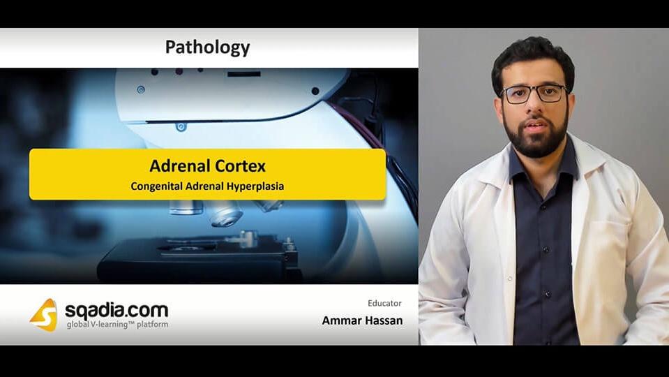 Data 2fimages 2fjqii7g9xra3lsfcoayy4 190405 s1 hassan ammar congenital adrenal hyperplasia