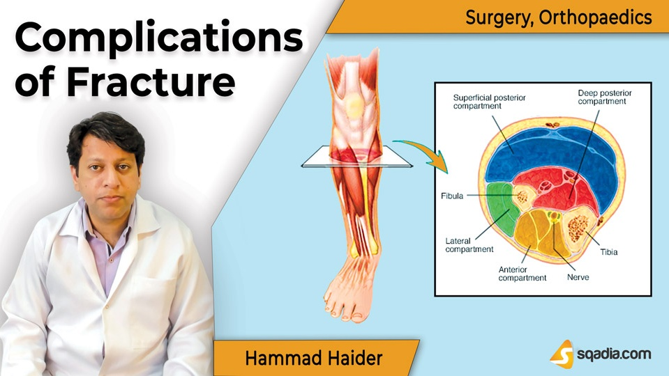 Data 2fimages 2fg9q7imcr0okr7tvebipa 190409 s0 haider hammad complications of fracture intro