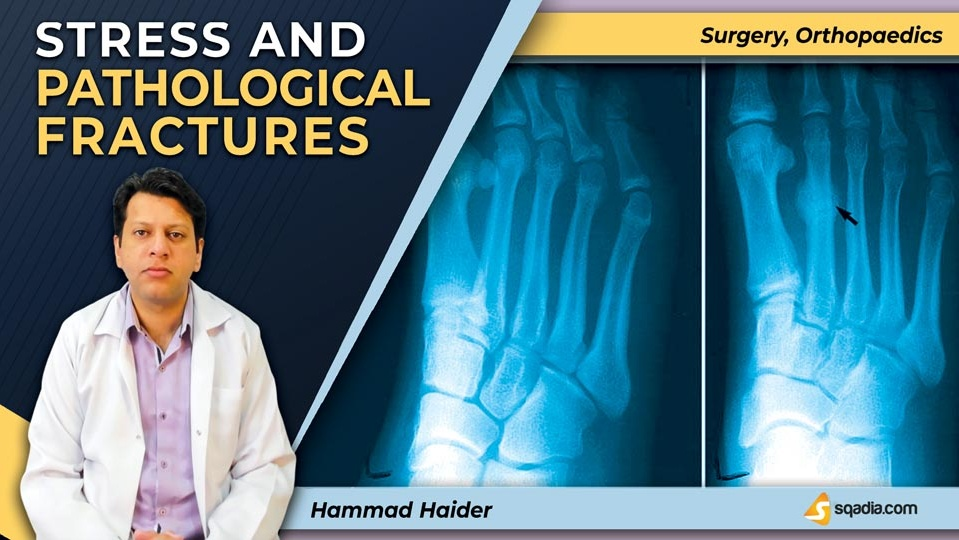 Data 2fimages 2fwhbog9iq8oek9llnexhq 190410 s0 haider hammad stress and pathological fractures intro