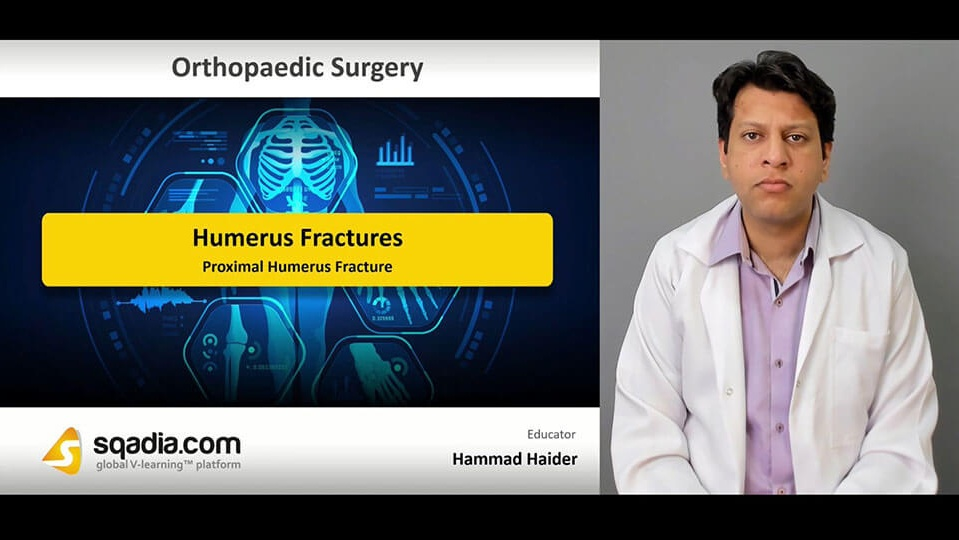Data 2fimages 2fnfbsv7tq5c9thclwl1rx 190416 s1 haider hammad proximal humerus fracture