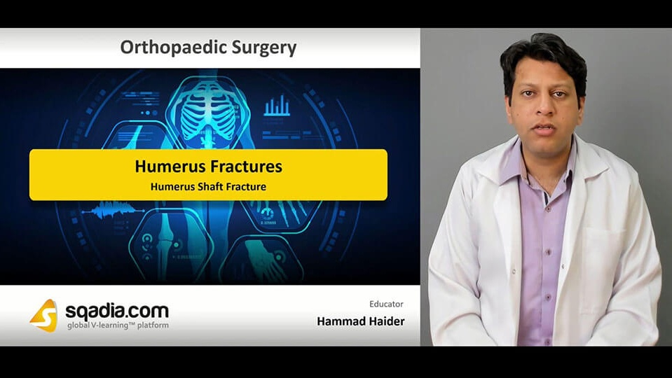 Data 2fimages 2fzfgtr07t7g0cal6s487e 190416 s3 haider hammad humerus shaft fracture