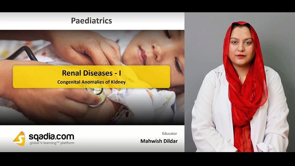 Data 2fimages 2ftlh1lfnrsa27yw0nz9ry 190417 s2 dildar mahwish congenital anomalies of kidney