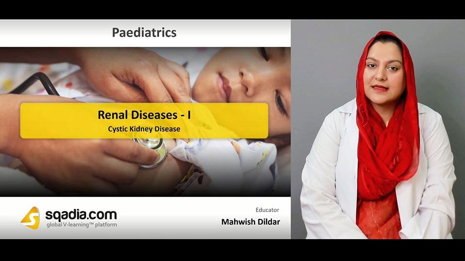 Data 2fimages 2foempxoksmlwwxzpf32xa 190417 s1 dildar mahwish cystic kidney disease