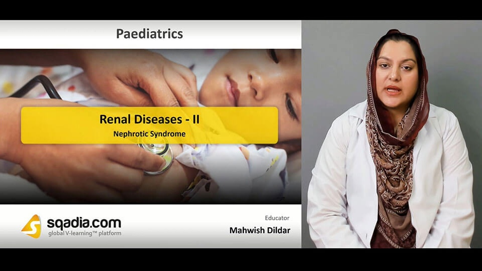 Data 2fimages 2ffe2wi5zs1if1rbif9ql8 190417 s5 dildar mahwish nephrotic syndrome