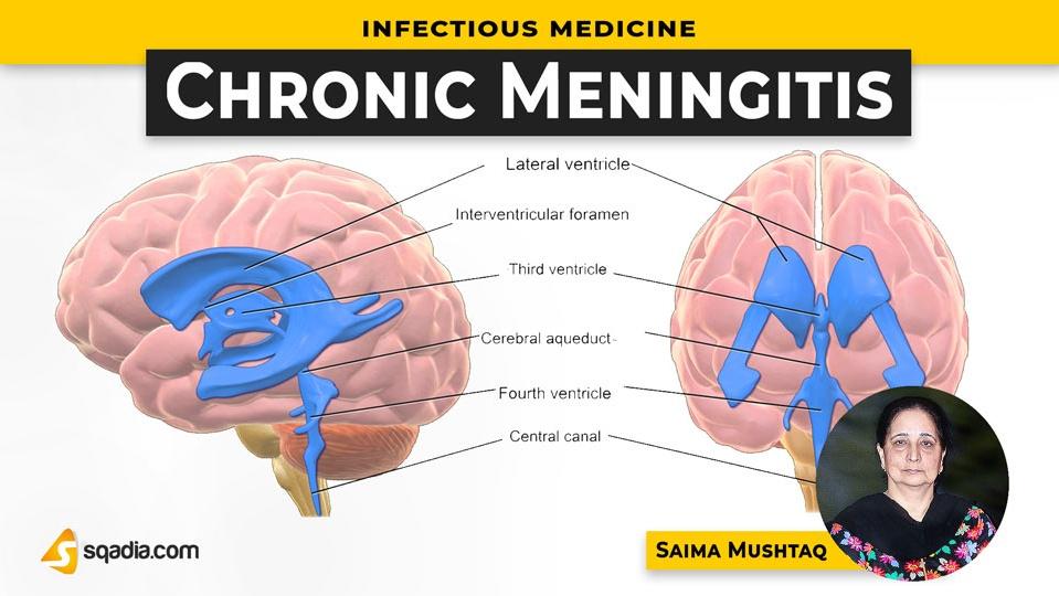 Data 2fimages 2f4y19dfhwqoljeahhgp1a 190506 s0 mushtaq saima chronic meningitis intro